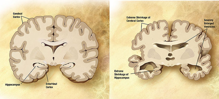 Normal and Alzheimer brain slices